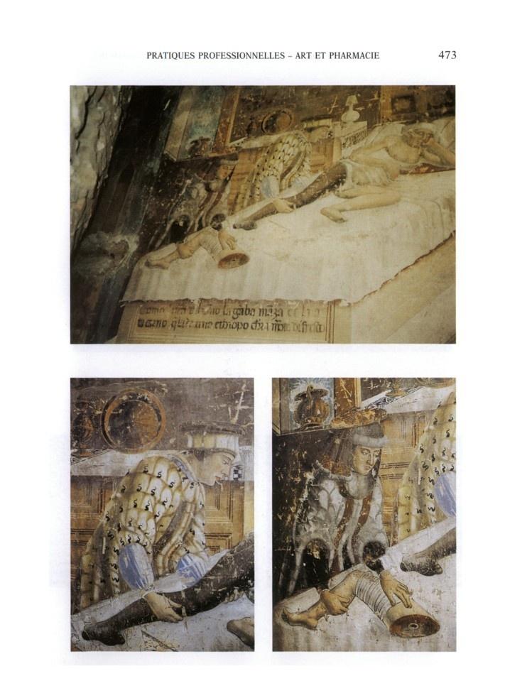 Saint Cosme et Saint Damien procédant à une guérison miraculeuse par la transplantation d'une jambe